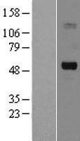 NBL1-16176 - SLC5A7 Lysate