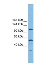 NBP1-57606 - CHTF18