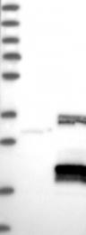 NBP1-88085 - C1orf77