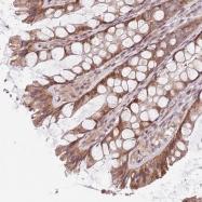 NBP1-94125 - Protein Churchill