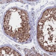 NBP1-89096 - Anamorsin