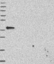 NBP1-89097 - Anamorsin