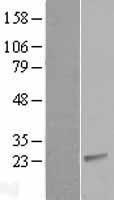 NBL1-09205 - CIB2 Lysate