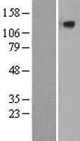 NBL1-09208 - CILP Lysate