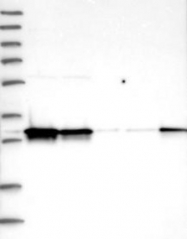 NBP1-88084 - Nuclear protein Hcc-1