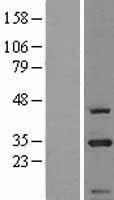 NBL1-09210 - CIP29 Lysate