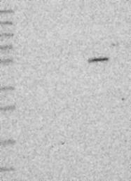 NBP1-91789 - Cirhin