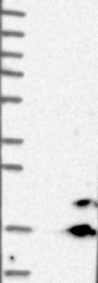 NBP1-84809 - CISD2