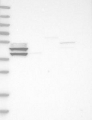 NBP1-89712 - Casein kinase I epsilon