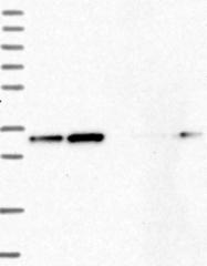 NBP1-85671 - CKAP1 / TBCB