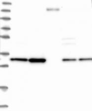 NBP1-85672 - CKAP1 / TBCB