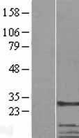 NBL1-16735 - CKAP1 Lysate
