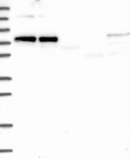 NBP1-83450 - CKAP2L