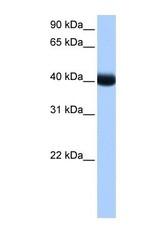 NBP1-57573 - CSNK1G3