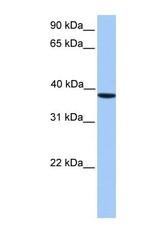 NBP1-56402 - CSNK2A2 / CK2A2