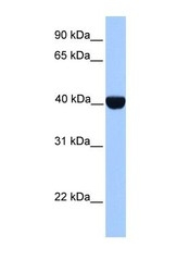 NBP1-56690 - CSNK2A2 / CK2A2
