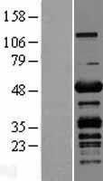 NBL1-14512 - CKIP-1 Lysate
