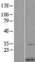 NBL1-09225 - CKS2 Lysate