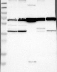 NBP1-82792 - CLCC1