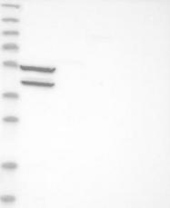 NBP1-85584 - CLCN2