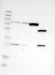 NBP1-85585 - CLCN2