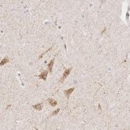 NBP1-84451 - CLCN5