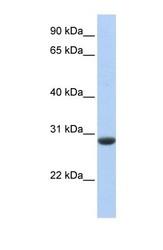 NBP1-59441 - CLDND1