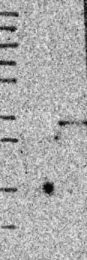 NBP1-84445 - CLEC4D