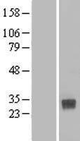 NBL1-09260 - CLEC4D Lysate