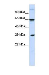 NBP1-59181 - CD299 / CLEC4M