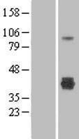 NBL1-09263 - CLEC4M Lysate