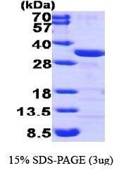 NBP1-44454 - CLIC1