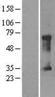 NBL1-09270 - CLIC5 Lysate