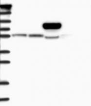 NBP1-83703 - CLPB