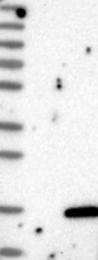 NBP1-86109 - Colipase