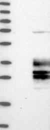 NBP1-81119 - Clarin-3