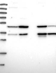 NBP1-84454 - CLYBL
