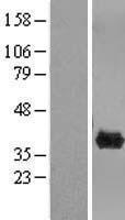 NBL1-09292 - CLYBL Lysate