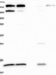 NBP1-86786 - CMC1