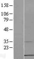 NBL1-09296 - CMC1 Lysate