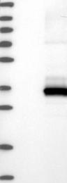 NBP1-85592 - CMTM2
