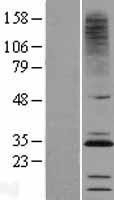 NBL1-09299 - CMTM2 Lysate