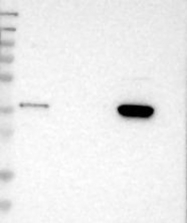 NBP1-88563 - CMTM3
