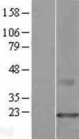 NBL1-09300 - CMTM3 Lysate