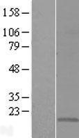 NBL1-09302 - CMTM5 Lysate