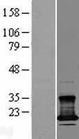 NBL1-09304 - CMTM7 Lysate