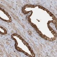 NBP1-86776 - Myospryn