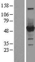 NBL1-09308 - CNDP2 Lysate