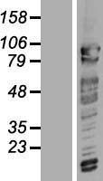 NBL1-09318 - CNOT3 Lysate