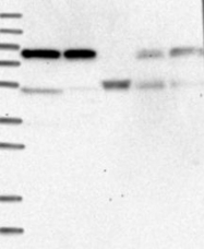 NBP1-88152 - ENOX1 / PIG38